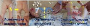 Клінічні симптоми при уродженому вивиху стегна