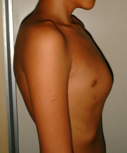 Руководство по лечению килевидной грудной клетки