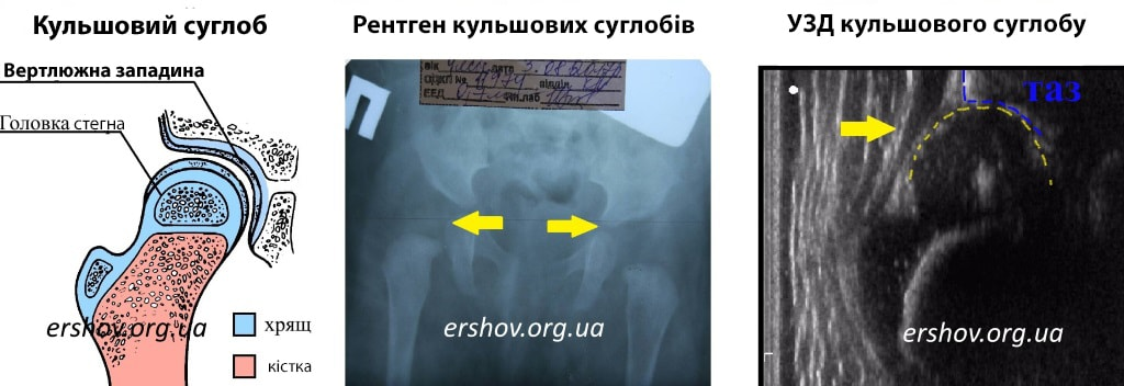 Анатомія-рентген-УЗД кульшового суглобу новонародженого