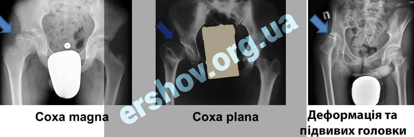 Види деформації головки стегнової кістки при хворобі Пертеса