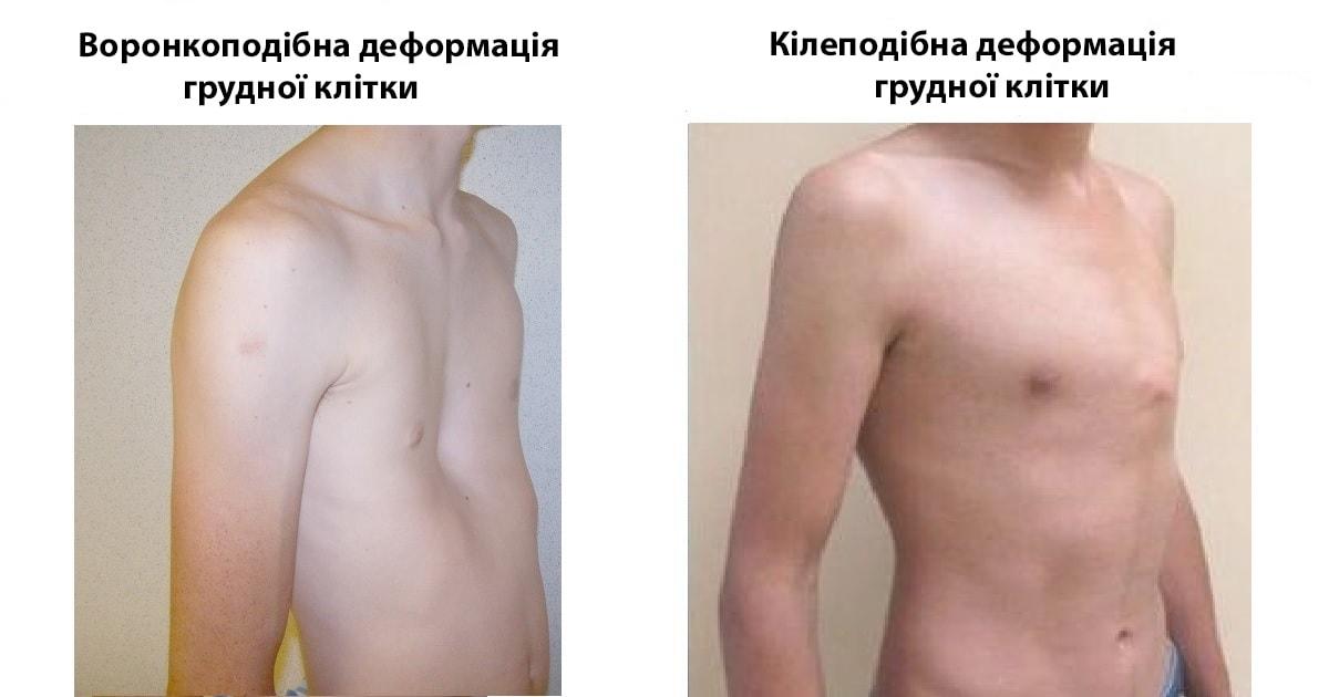 Воронкоподібна та кілеподібна деформації грудної клітки у дітей
